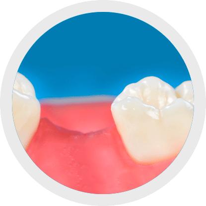 Igiene della breccia edentula con lo spazzolino interdentale