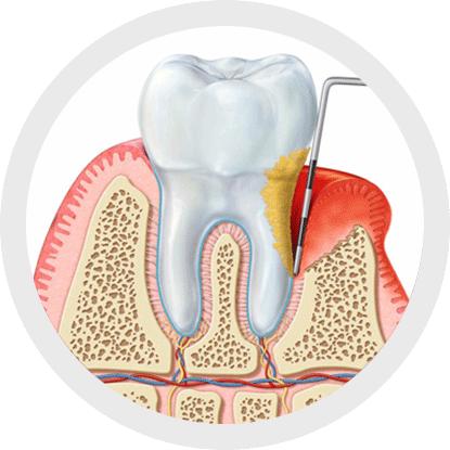Qual è la causa delle malattie parodontali?